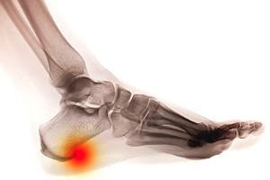 Symptoms of a Heel Spur