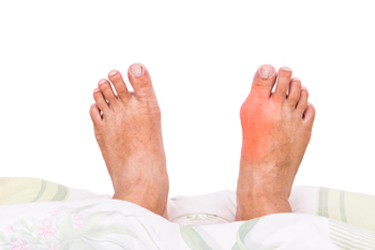 Possible Reasons for Gout Attacks