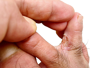 How Can You Tell If Athlete's Foot Has Developed