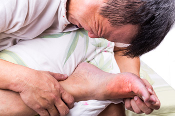 Possible Reasons Gout Can Occur