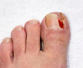 Ingrown toenail treatment in the Las Vegas, NV 89117 and 89113, Henderson, NV 89052 areas
